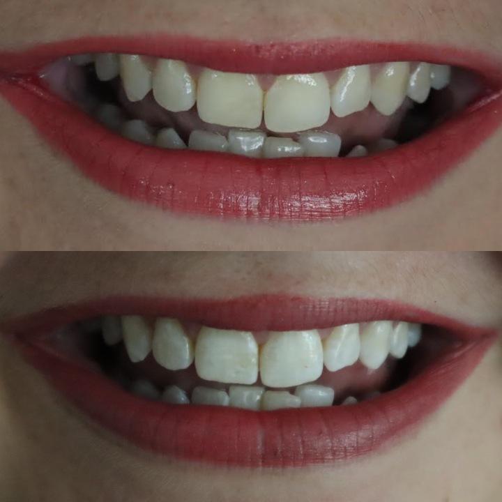 Teeth Whitening For SensitiveTeeth
